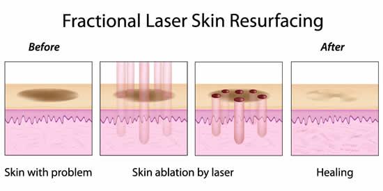 foto laser fracionado 1